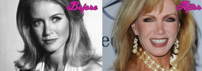 Donna Mills Before and After Surgery Pics