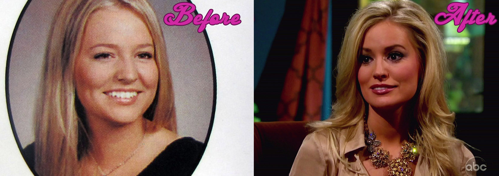 Emily Mmaynard Plastic Surgery Before And After