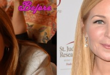 Jennifer Westfeldt Plastic Surgery Before and After Pics