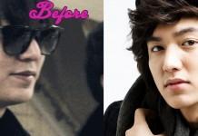 Lee Min Ho Plastic Surgery photo, pic