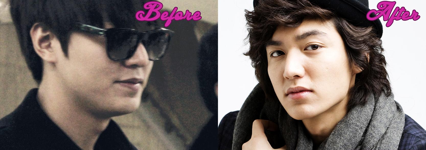 Lee min ho plastic surgery learn more about lee min ho surgery