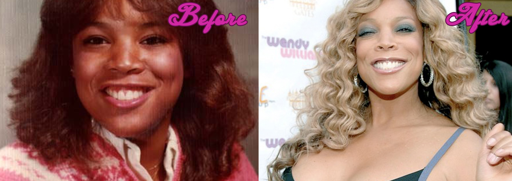 Wendy Williams Before Surgery Pictures To Pin On Pinterest