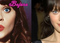 Zooey Deschanel Before and After Surgery Pictures