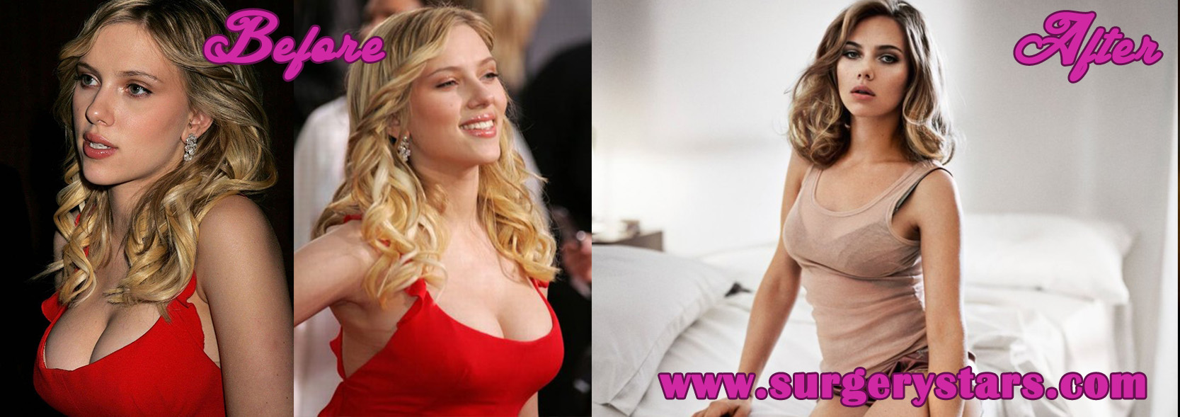 breast reduction before and after pictures  613264