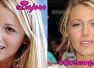 blake lively before and after nose jobl