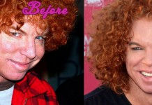 Carrot Top Before and After Cosmetic Surgery Pics