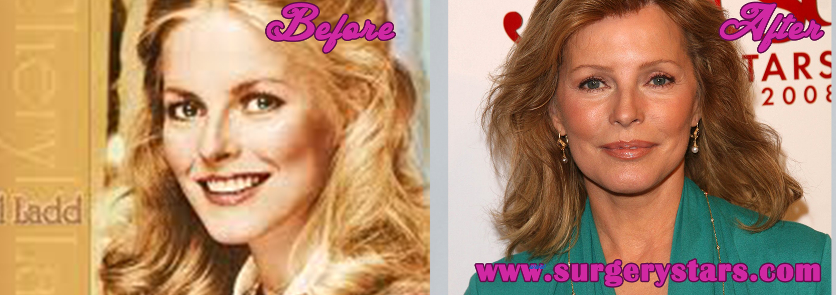 Cheryl Ladd Plastic Surgery Before and After Pictures
