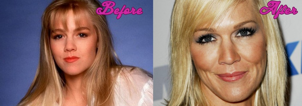 Jennie Garth Plastic Surgery Photos