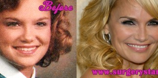 Kristin Chenoweth Plastic surgeries Before and After