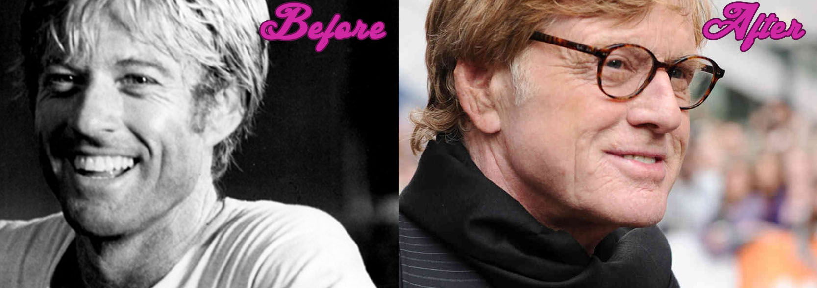 Robert Redford is 77 and not so Many Wrinkles, Natural or Not?