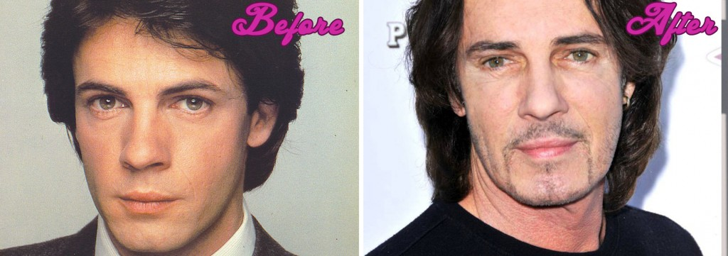 Rick Springfield Plastic Surgery Before and After Pictures