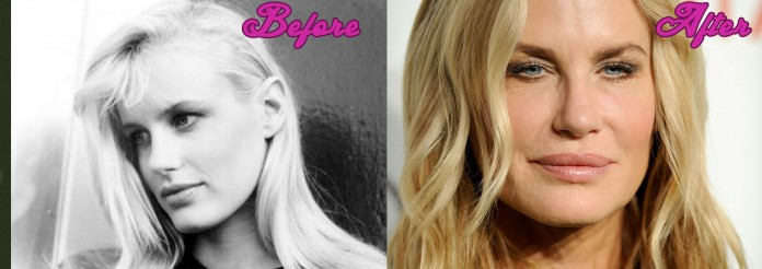 Daryl Hannah Plastic Surgery Gone Wrong Photos