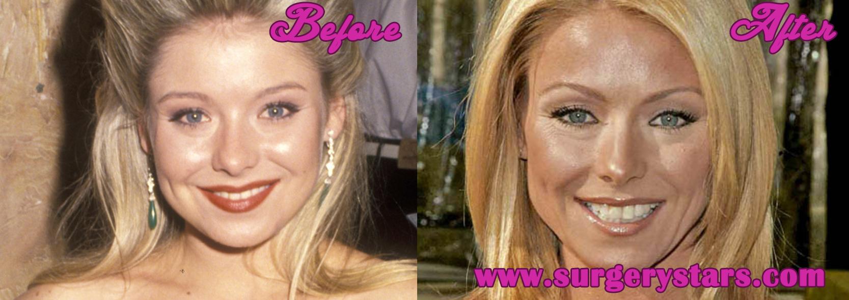 Kelly Ripa Plastic Surgery nose job and botox