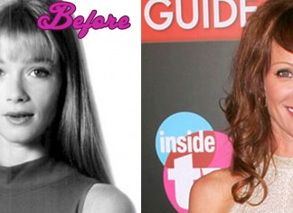 Lauren Holly Plastic Surgery... Or not?
