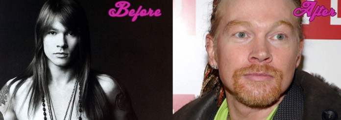 The Axl Rose Plastic Surgery - Celebrity Makeover