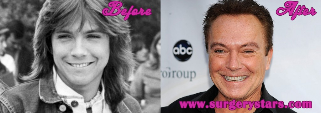 David Cassidy Before and After Plastic  Surgery