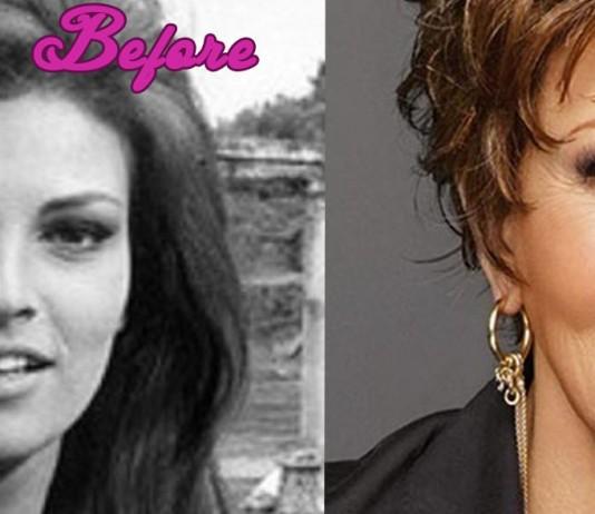 Raquel Welch Plastic Surgery Pics