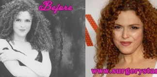 Bernadette Peters sugery pictures