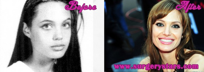Angelina Jolie Plastic Surgery Before and After Pics