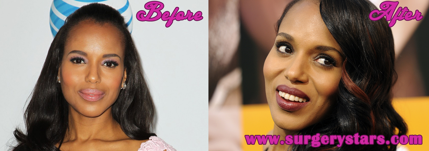 Kerry Washington Before and After Plastic Surgery Photos
