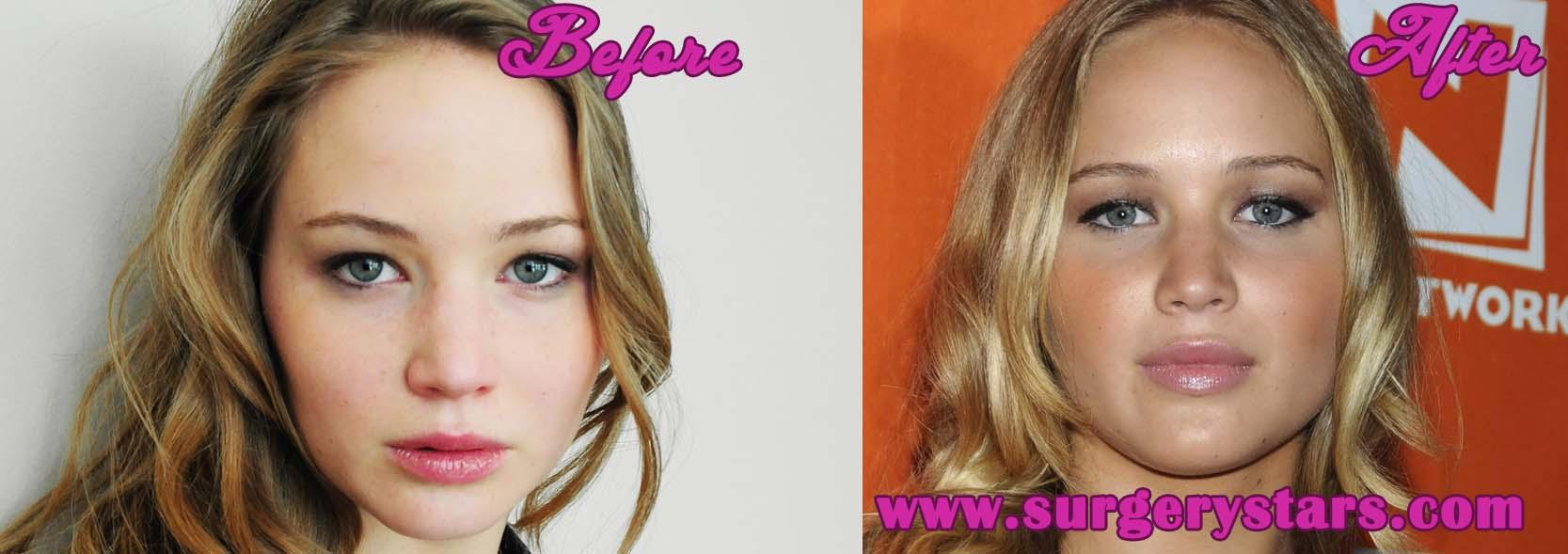 jennifer garner lips before and after