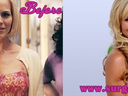 julie benz before and after sugery