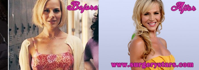 julie benz plastic surgery before and after hot girls wallpaper. Cars Review. Best American Auto & Cars Review