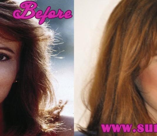 patricia richardson plastic surgery
