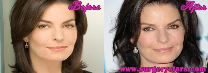 sela ward plastic surgery