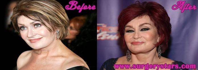 sharon osbourne before plastic surgery