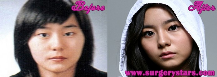 uee plastic surgery