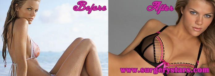 brooklyn_decker_big breast before and after final