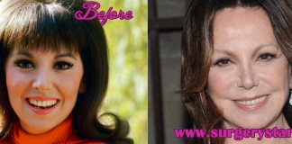 Marlo Thomas Plastic Surgery