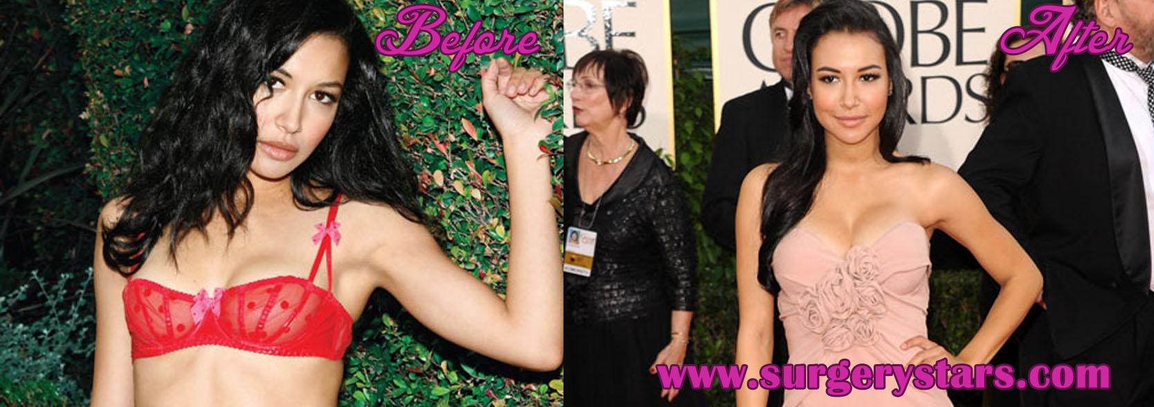 Naya Rivera Plastic Surgery