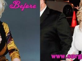 Dolly Parton Breasts