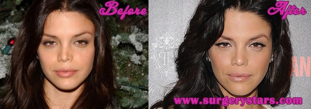 Vanessa Fertilo Plastic Surgery