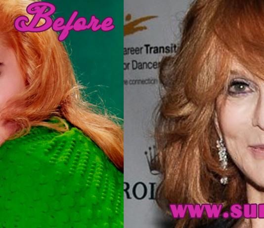 Ann Margret Plastic Surgery