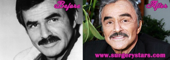 Burt Reynolds Plastic Surgery