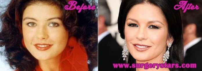 Catherine Zeta Jones Plastic Surgery