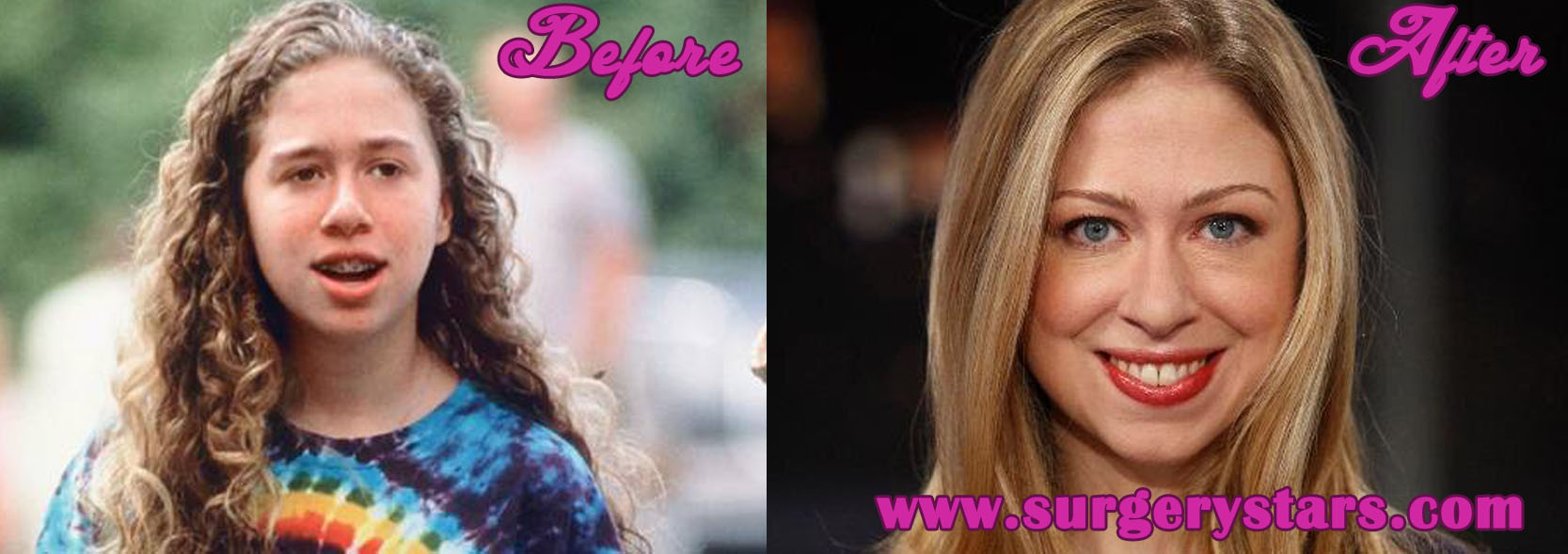 Chelsea clinton plastic surgery before and after pictures