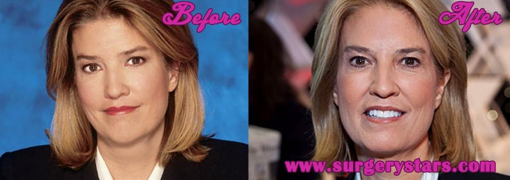 Greta Van Susteren Plastic Surgery