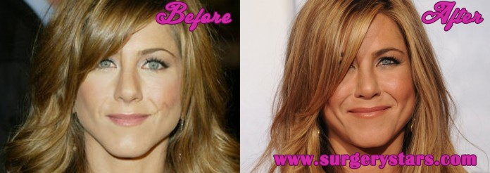 Jennifer Aniston Nose Job