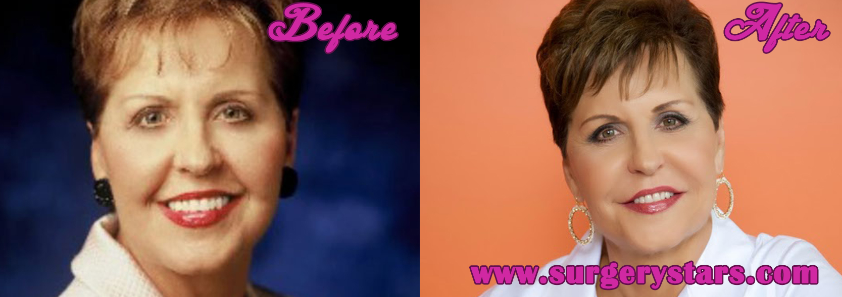 Joyce Meyer Plastic Surgery – Before and After Pictures