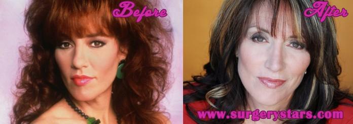 Katey Sagal Plastic Surgery