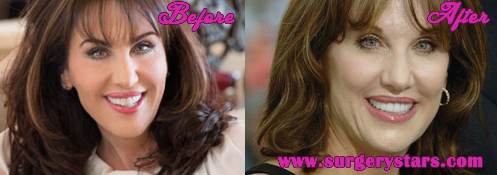 Robin jo jameson robin mcgraw plastic surgery before and after