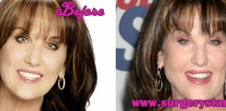Robin Mcgraw Plastic Surgery