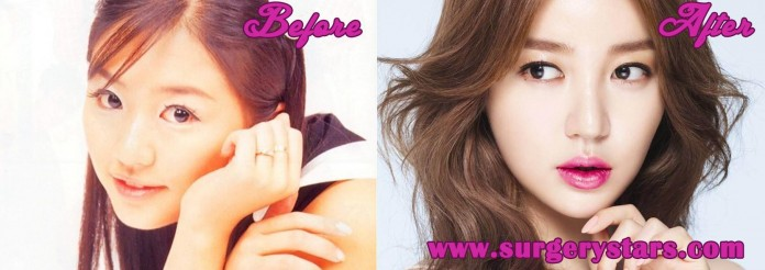 Yoon Eun Hye Plastic surgery