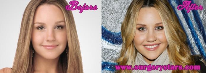 Amanda Bynes Plastic Surgery