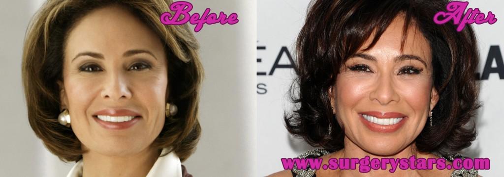 Jeanine Pirro Plastic Surgery