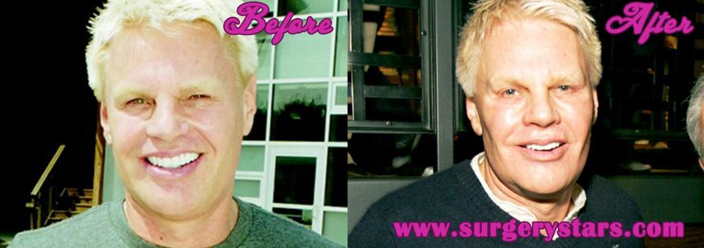 Mike Jeffries Plastic Surgery